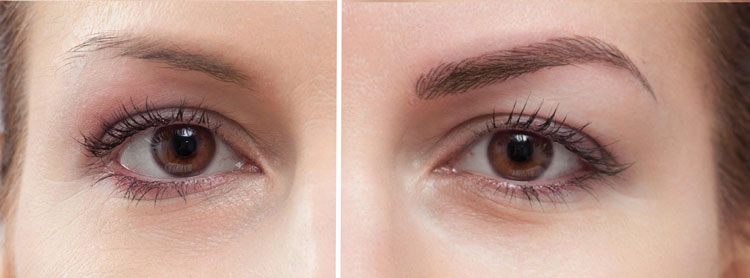 Sirius Day Spa Microblading - Before and After