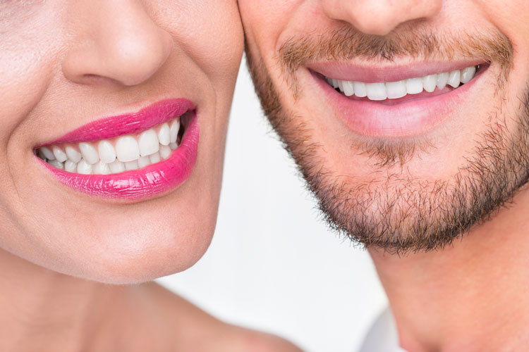 Sirius Day Spa Teeth Whitening Couple